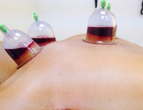 Cupping formation in Rabat-Hassan